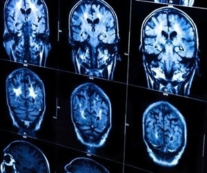 Scientists discover key aspect in the development of multiple sclerosis