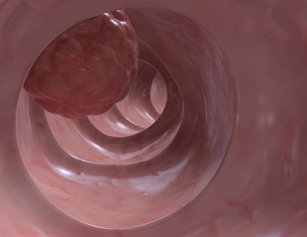 Research uncovers new target for therapy, diagnosis, and prognosis of colon cancer