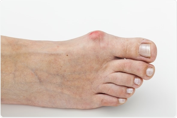 Closeup of a bunion - hallux valgus