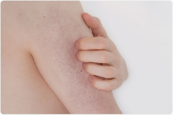 Young man with Keratosis pilaris on his upper arm