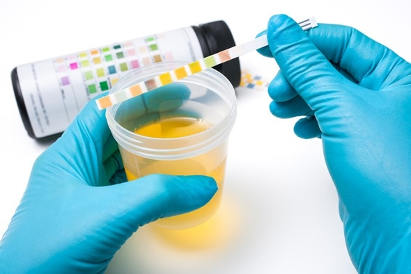 Check-up. Medical report and urine test strips - Image Copyright: Alexander Raths