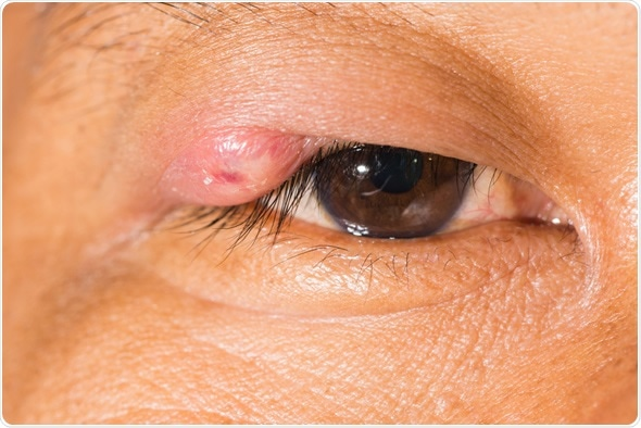 Close up of the stye during eye examination. Image Copyright: ARZTSAMUI / Shutterstock