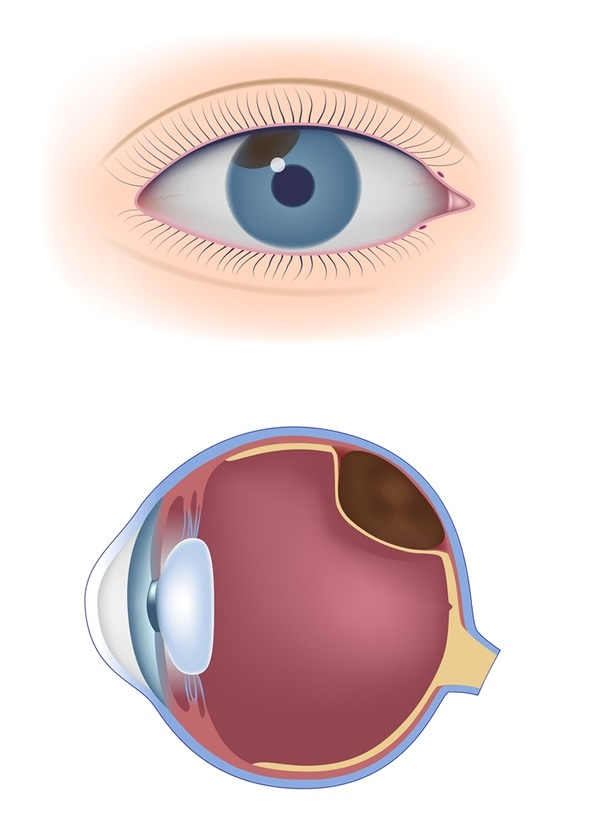 Uveal melanoma - Image Copyright: Alila Medical Media / Shutterstock