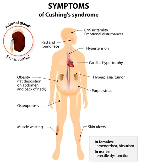 Cushing S Syndrome Signs And Symptoms