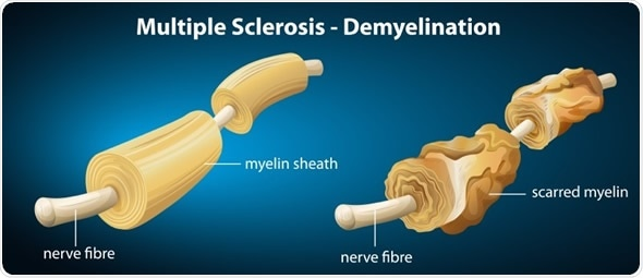 Illustration showing the multiple sclerosis - Image Copyright: BlueRingMedia / Shutterstock