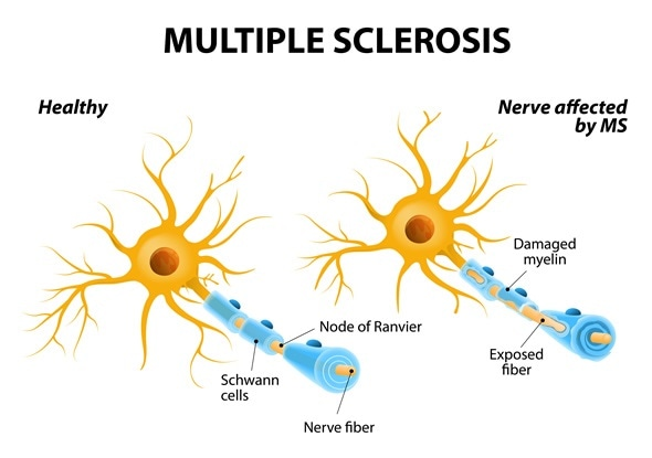 Multiple sclerosis or MS. autoimmune disease. the nerves of the brain and spinal cord are damaged by one