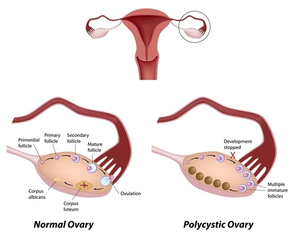 Normal ovarian cycle and Polycystic ovary syndrome - Image Copyright: Alila Medical Media / Shutterstock