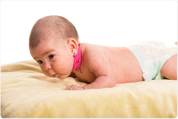Newborn baby having torticollis neck waiting for massage - Image Copyright: Blaj Gabriel / Shutterstock