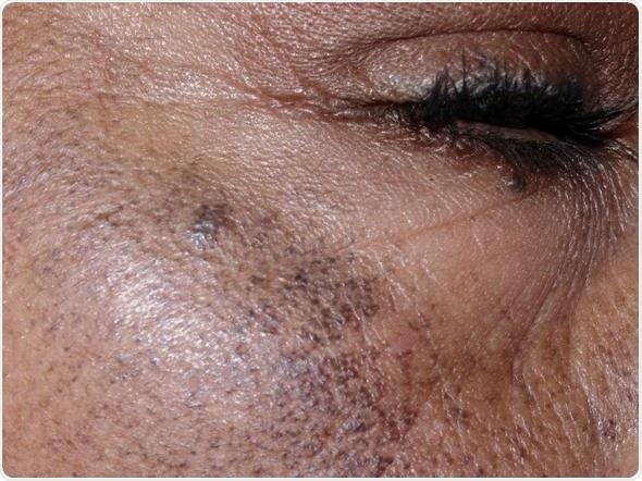 ochronosis skin disorder
