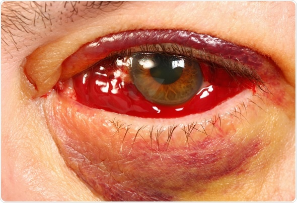 Bloody Eye 1 1/2 weeks after vitrectomy surgery for PVR (retinal detachment). Image Copyright: Steve Bower / Shutterstock