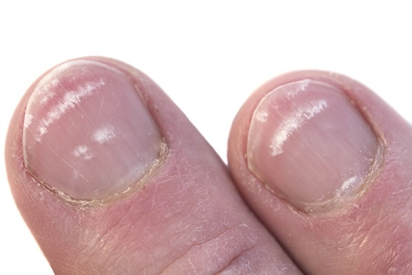 Fingernails closeup with the condition called leukonychia, white lines under the nail. Image Copyright: deepspacedave / Shutterstock