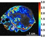 University of Arizona could contribute to improved tumor assessment with preclinical PET scanner for simultaneous PET/MRI