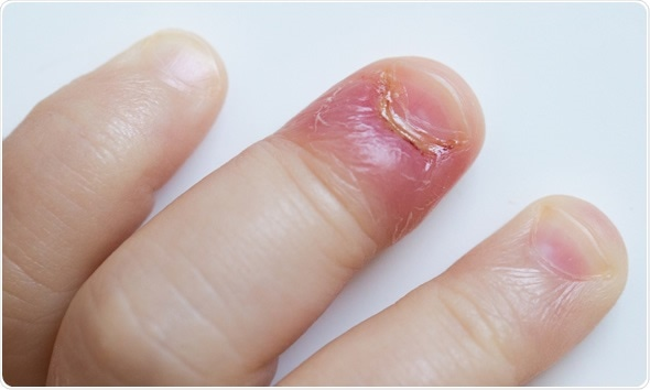 Paronychia, swollen finger with fingernail bed inflammation due to bacterial infection on a toddlers hand. Image Copyright: zlikovec / Shutterstock