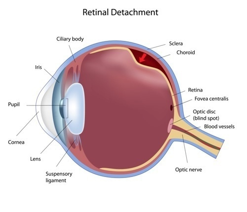 Eye condition: retinal detachment - Image Copyright: Alila Medical Media / Shutterstock