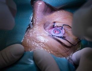 cicatriz en el tratamiento de la retina diabetes