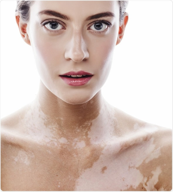 De la crema para el blanqueamiento de la piel morena