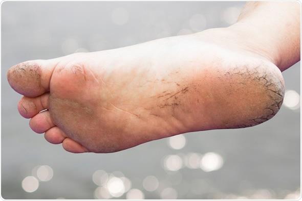 piel escamosa piernas tratamiento de diabetes