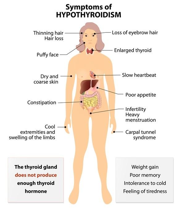 Systems of hyperthyroidism