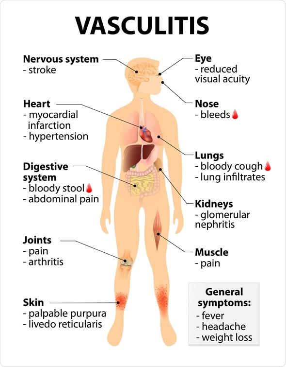 granulomatosis de wegener sintomas de diabetes