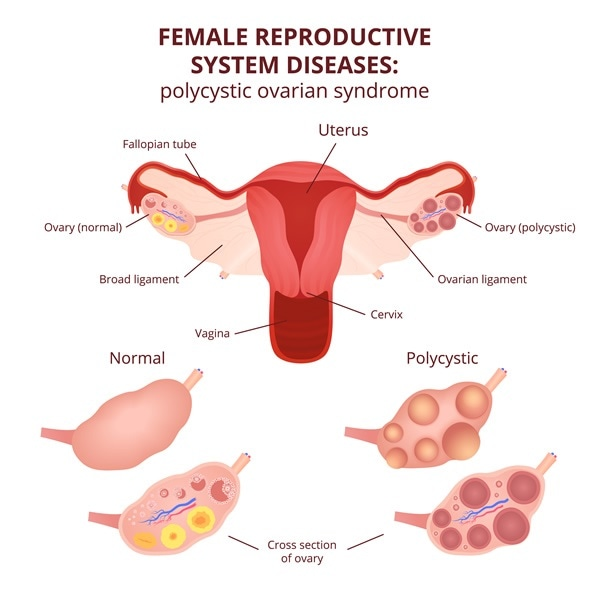 Polycystic Ovary Syndrome Treatment