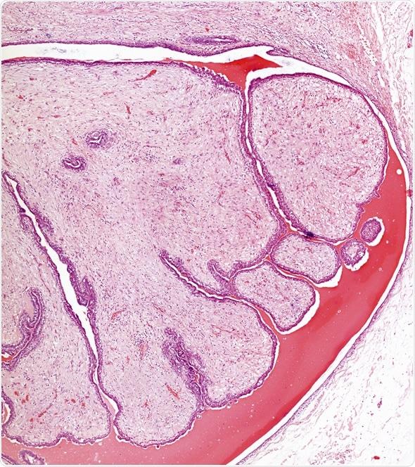 Fibroid adenoma in the breast