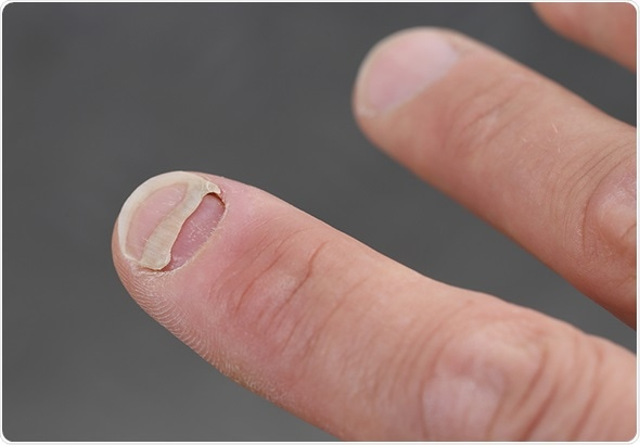 A Patient With Nail Detachment Image Copyright Riopatuca Via Shutterstock