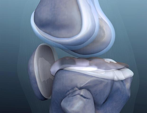 Risks associated with knee arthroplasty