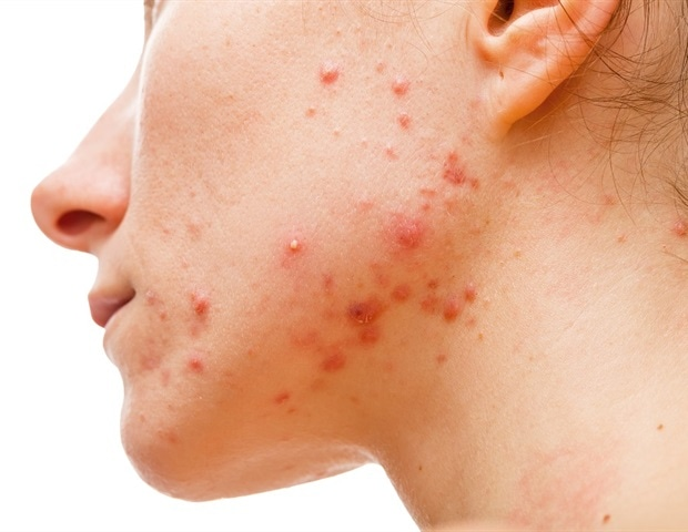 Symptoms And Stages Of Hidradenitis Suppurativa