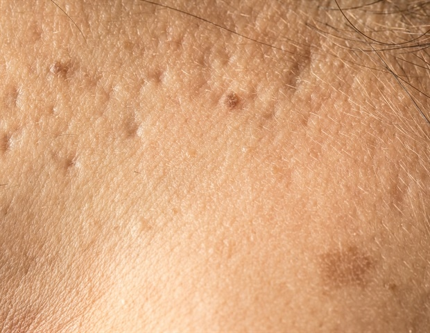 Microneedling helps decrease the appearance of acne scars