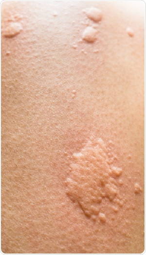 Hives In Babies