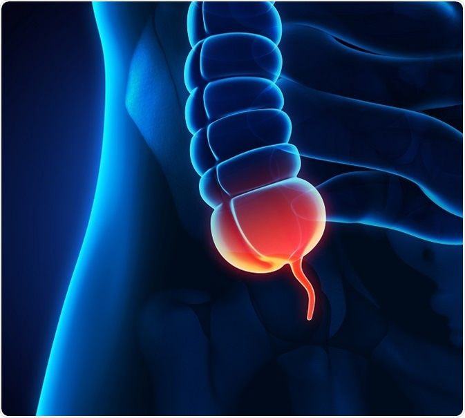 Appendix Cancer - Pseudomyxoma Peritonei (PMP)