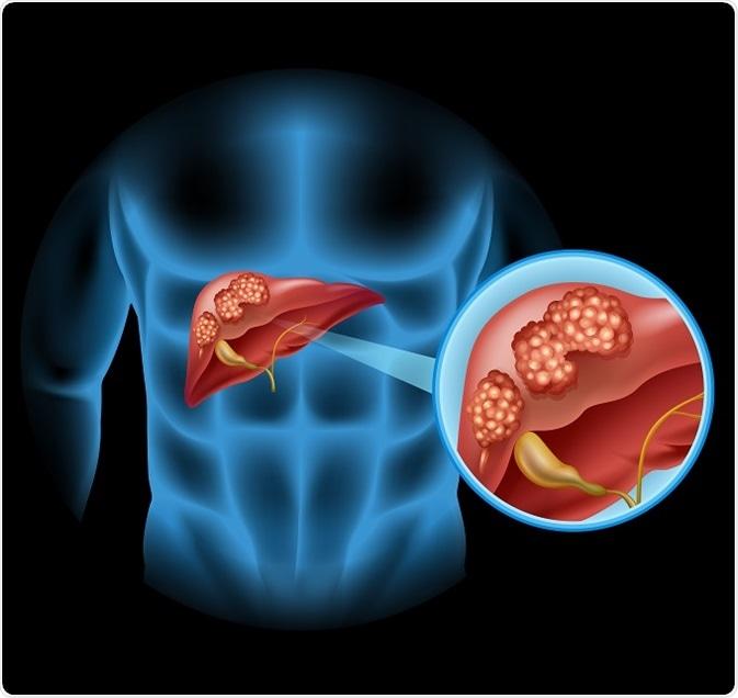 que es cancer hepatico helmintox notice