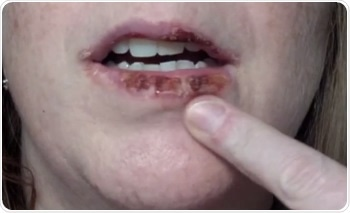 Actinic Cheilitis Prognosis And Mouth Cancer