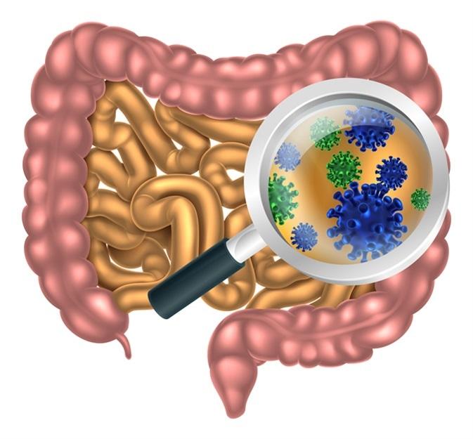 Pequeña Diagnosis Bacteriana Intestinal del Crecimiento Excesivo