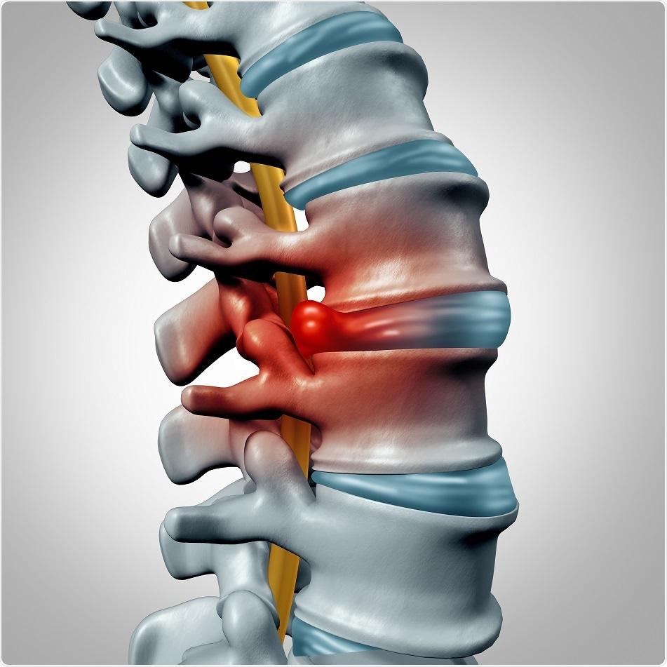 La terapia Menos invasor releva el dolor de espalda, estados del estudio