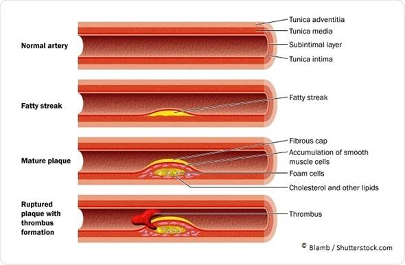 Resultado de imagem para Doença Arterial Coronariana
