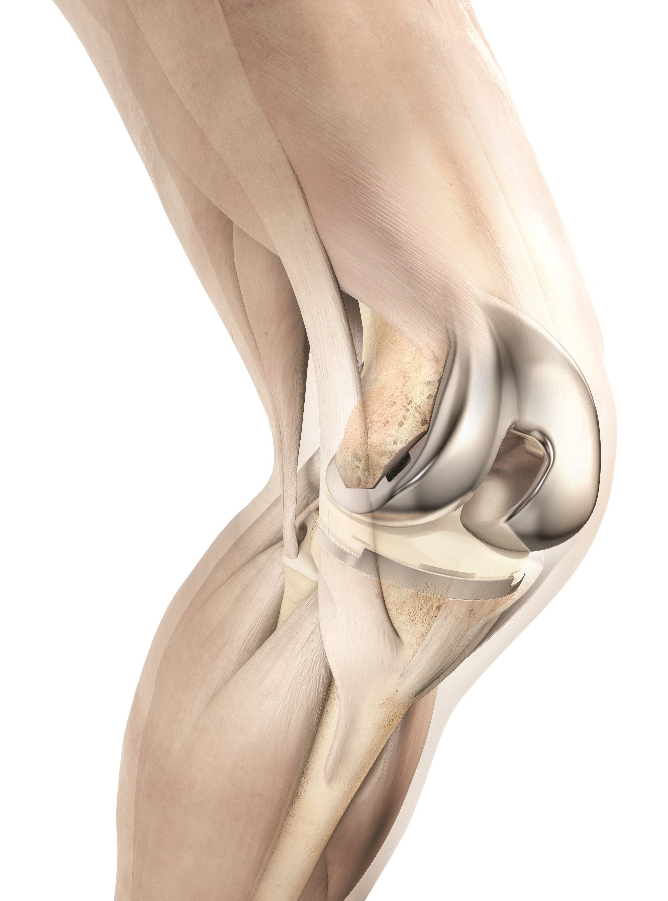 DePuy Synthes knee system shown to be beneficial for economics and ...