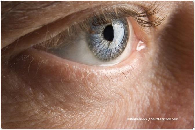Papilloma virus oculare, Case Report