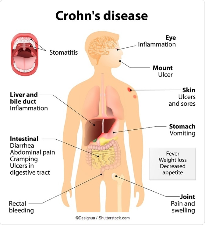 history of crohn's disease, Skeleton