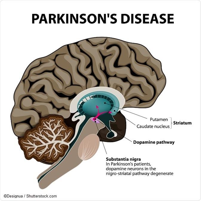 Parkinson S Disease Pathophysiology