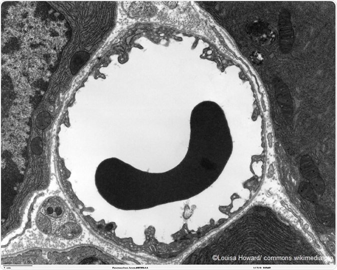 image.axd?picture=2017%2F5%2FRed blood cell using TEM 680x   Louisa Howard   commons.wikimedia.org - Principle Of Electron Microscopy And Its Applications