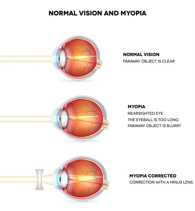 nearsightedness and farsightedness, Cephalic Vein