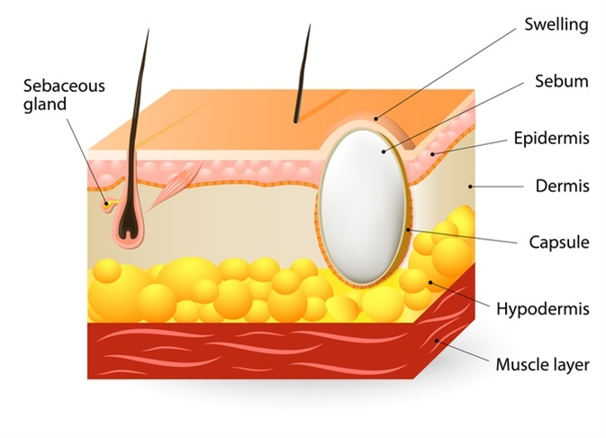 sebaceous cysts or trichilemmal cyst  schematic illustration of a segment  of skin with sebaceous cyst