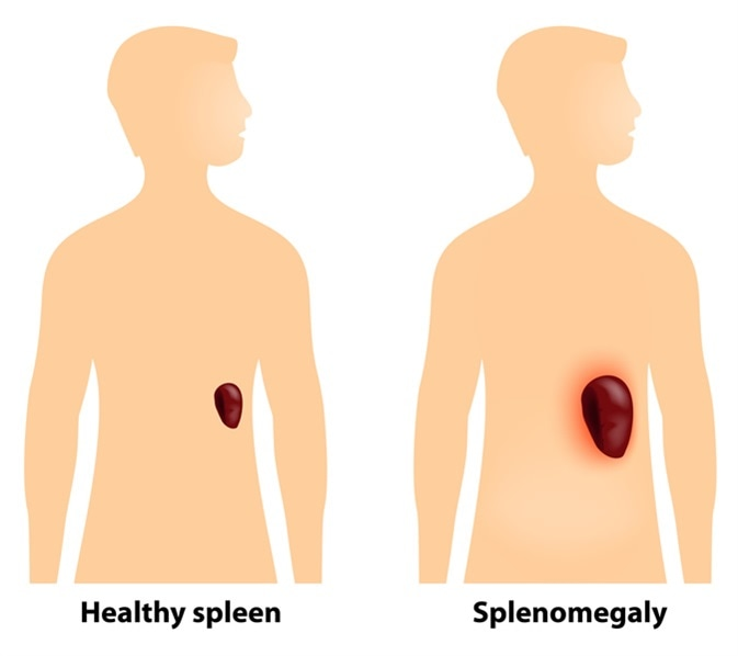 enlarged spleen (splenomegaly), Skeleton