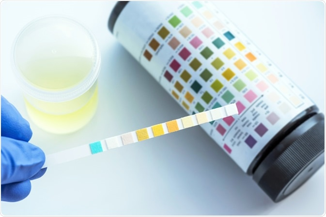 Blood And Urine Tests Developed To >> Causes Of Blood In Urine
