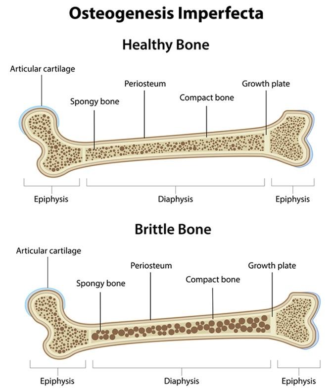 Types Of Osteogenesis Imperfecta Oi Brittle Bone Disease