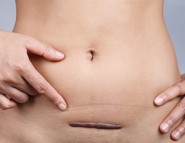 Side Effects Following A Hysterectomy