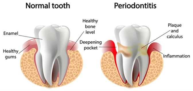 Periodontitis Memiliki Hubungan dengan Penyakit Ginjal- Global Estetik Dental Care