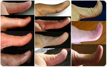 Genetics of Hitchhiker's Thumb