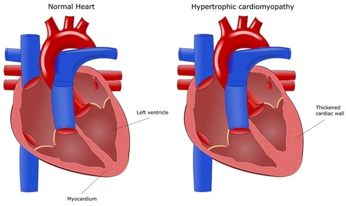 hypertrophic cardiomyopathy (hcm), Skeleton
